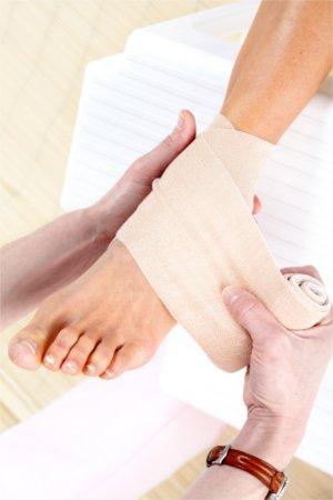 Szare mydło jest doskonałe do łagodzenia objawów stłuczeń i skręceń.
