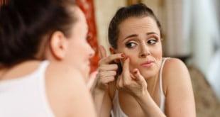 Jak usunąć blizny po trądziku - co musisz wiedzieć