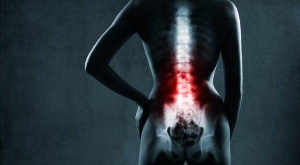 ćwiczenia, które w domu pomogą Ci się uporać z bólem pleców