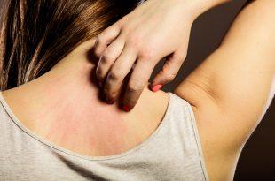 Jak sobie radzić ze swędzącą skórą?