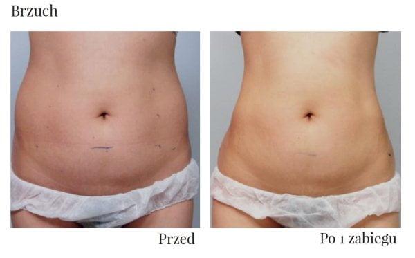 Tak wygląda brzuch przed i po zabiegu hifu