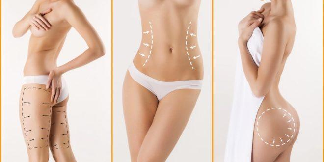 Zabieg liposukcji i lipotransferu doskonały do polepszenia wyglądu.