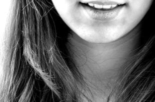 O czym pamiętać, zakładając aparat na zęby?