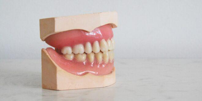 jak dorośli mogą wybrać aparat ortodontyczny