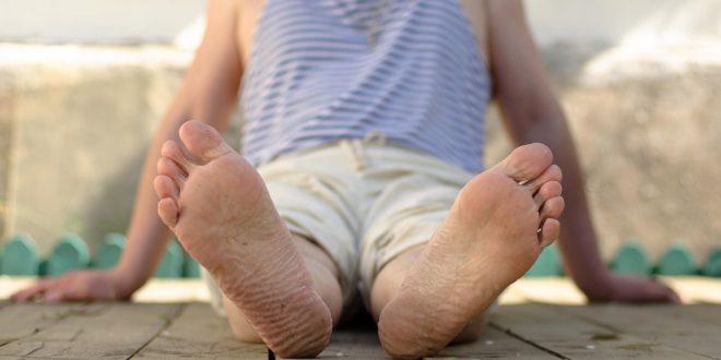Czym jest nadpotliwość stóp?